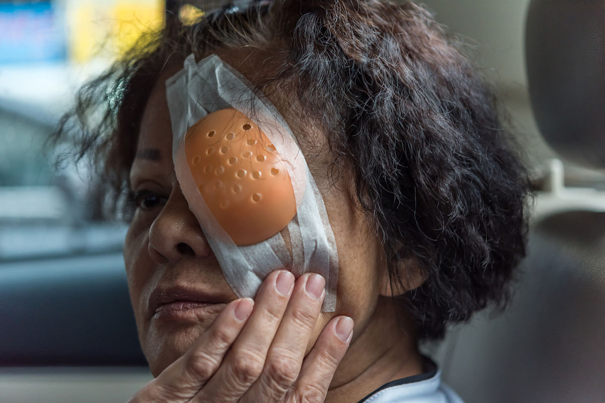 Recent reports suggest that cataract surgeries have been the most sought-after procedure under PMJAY. Image used for representation.