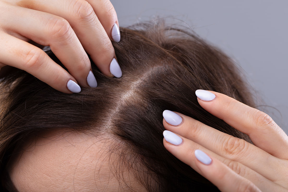 Struggling with Dandruff & Hair Loss? Try These Ayurvedic Remedies