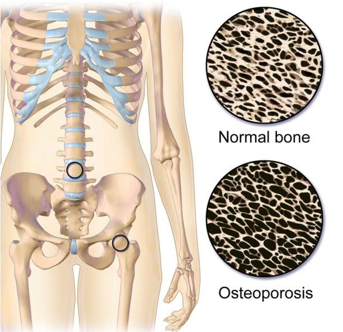 हड्डियों की डेंसिटी कम हो जाती है