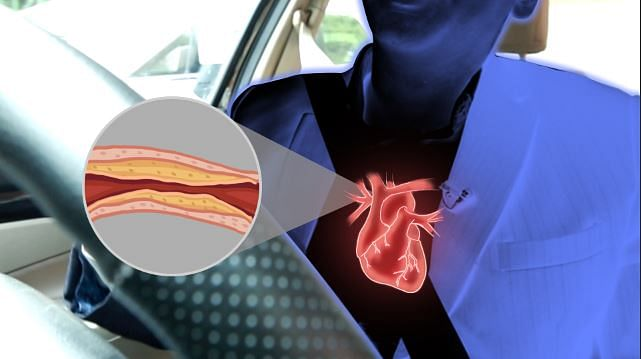 Cholesterol deposits in arteries because of inflammation from toxins
