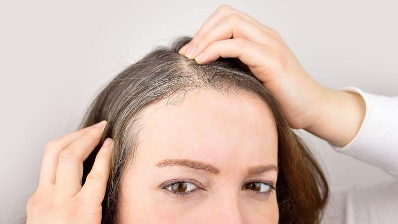 समय से पहले बाल सफेद होने के कई कारण हैं.