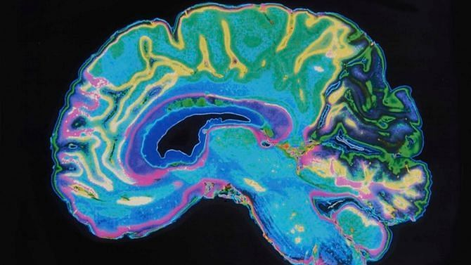 अल्जाइमर रोग की पैथोफिजियोलॉजी काफी जटिल है.