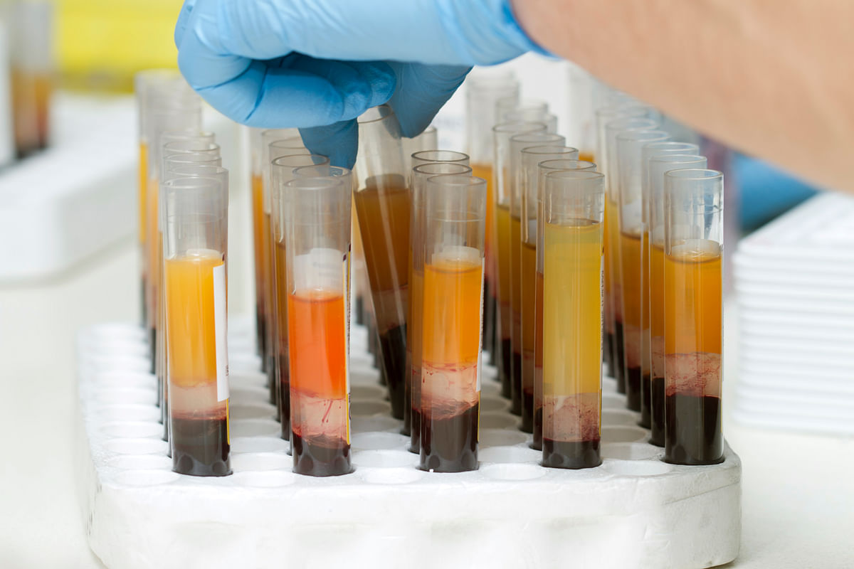 Blood plasma is a yellowish, clear liquid.