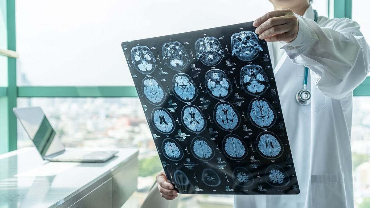 Study Warns of Serious Brain Disorder in People with Mild COVID-19