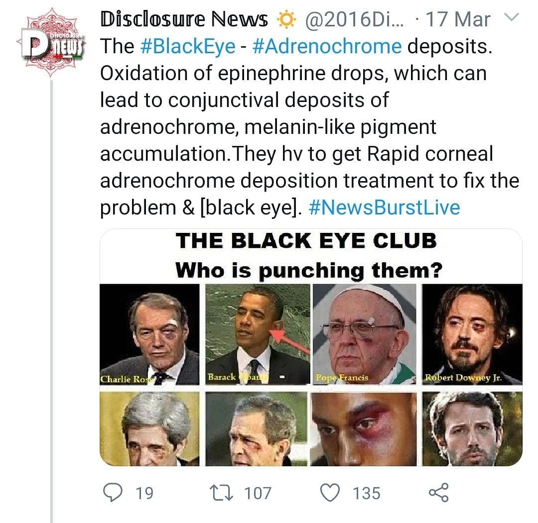 'Adrenochrome Eye': No, Celebs Are Not Injecting Tears of Children