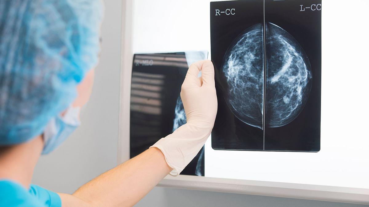 Novel Testing Platform Designed for Breast Cancer Cells: Study