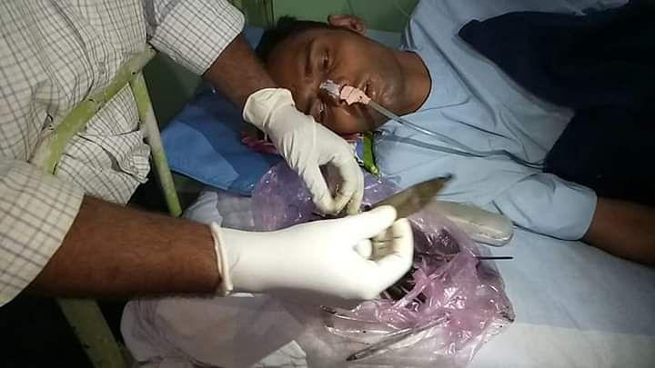 ऑपरेशन के बाद योगेश