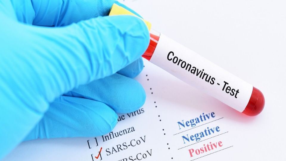 pcr test for covid 19