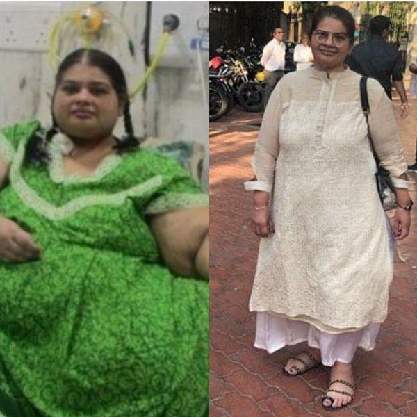 `அன்று 300 கிலோ, இன்று 86 கிலோ!'- கின்னஸ் சாதனைக்குக் காத்திருக்கும் மும்பைப் பெண்