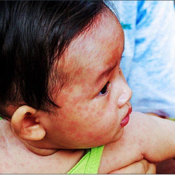 `அம்மை நோய் பாதிப்பு 300 சதவிகிதம் அதிகரிப்பு!' - எச்சரிக்கும் உலக சுகாதார நிறுவனம்