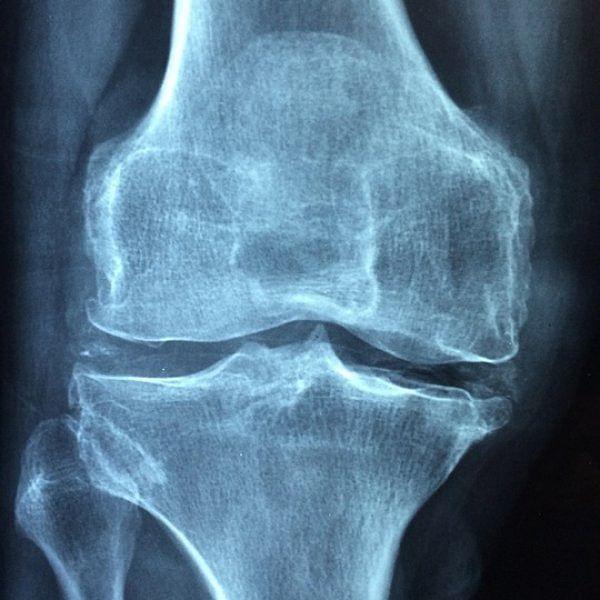 கை, கால், தொடைகளில் எலும்பு வலியா..?!  அலட்சியம் வேண்டாம்! #Osteoblastoma