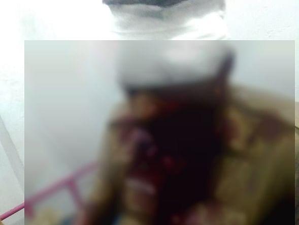 என்னையே போக சொல்றியா…. மீன் வெட்டும் கத்தியால் போலீசை  வெட்டிய இஸ்மாயில்
