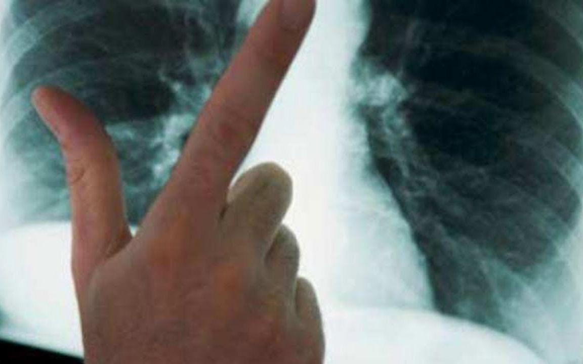 நஞ்சான காற்று! - நுரையீரல் புற்றுநோயால் பாதிக்கப்பட்ட 28 வயது டெல்லி பெண்