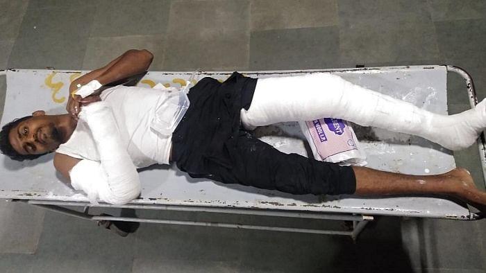 Police Breaking accused hand anda leg