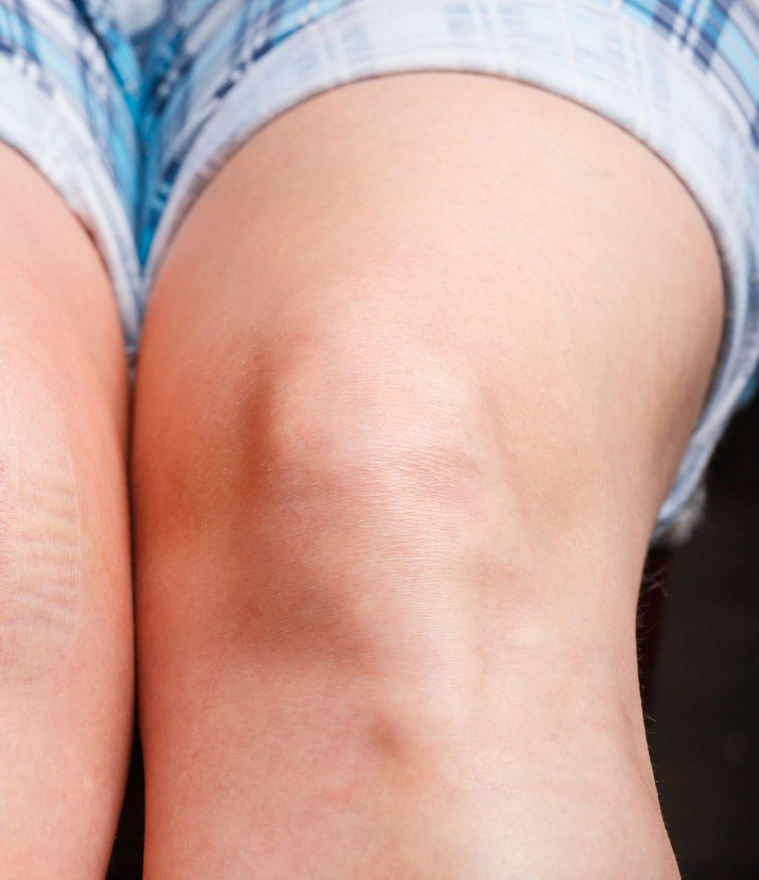 Dark Knee problem