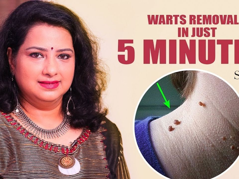 How to remove a wart without pain? Vasunthara Explains