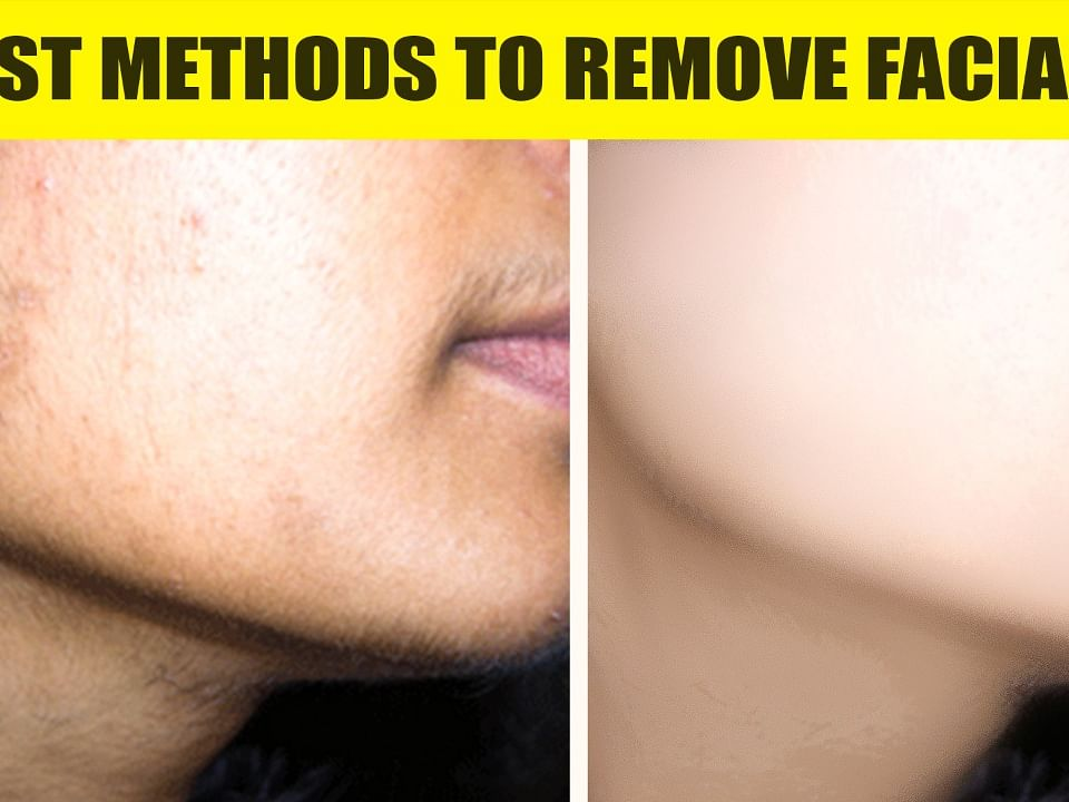 Easy way to REMOVE FACIAL HAIR at Home! | #15dayschallenge Day 8