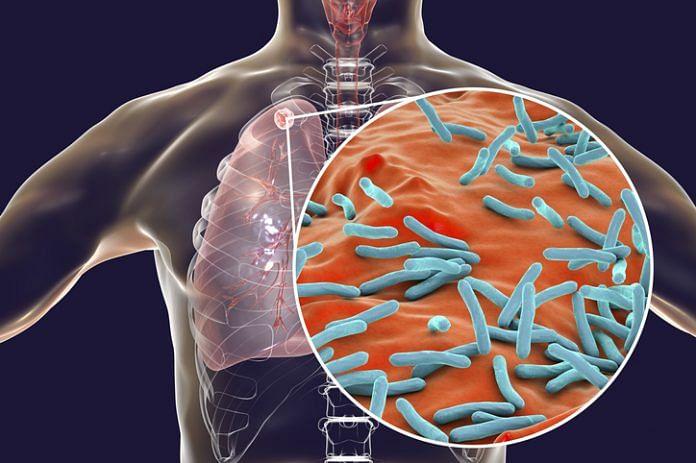 Lung problem (Representational Image)