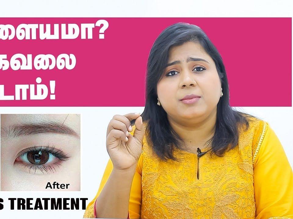 கருவளையத்தைப் போக்குவது எப்படி? | Tips, Natural Remedies & Treatment for dark circles