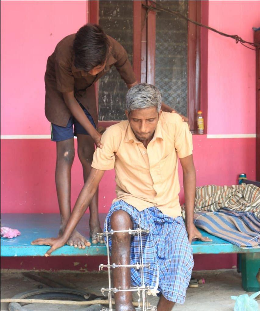 காலில் கம்பி கட்டப்பட்ட நிலையில் சோமசுந்தரம்