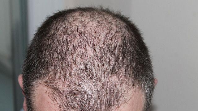Hair loss (Representational Image)