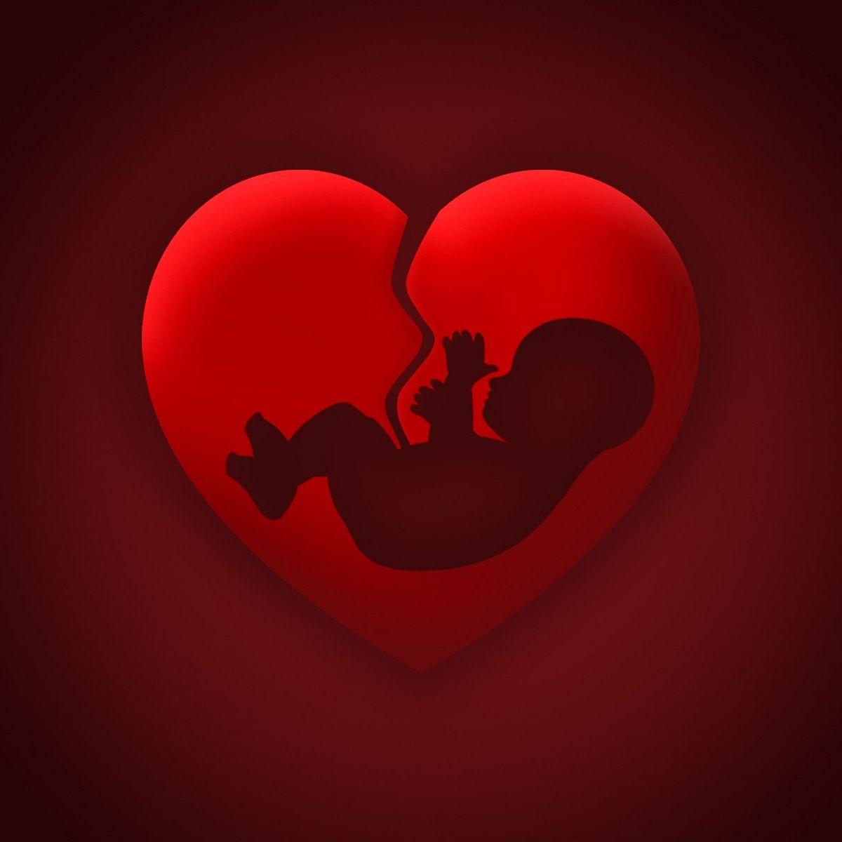 Abortion (Representational Image)