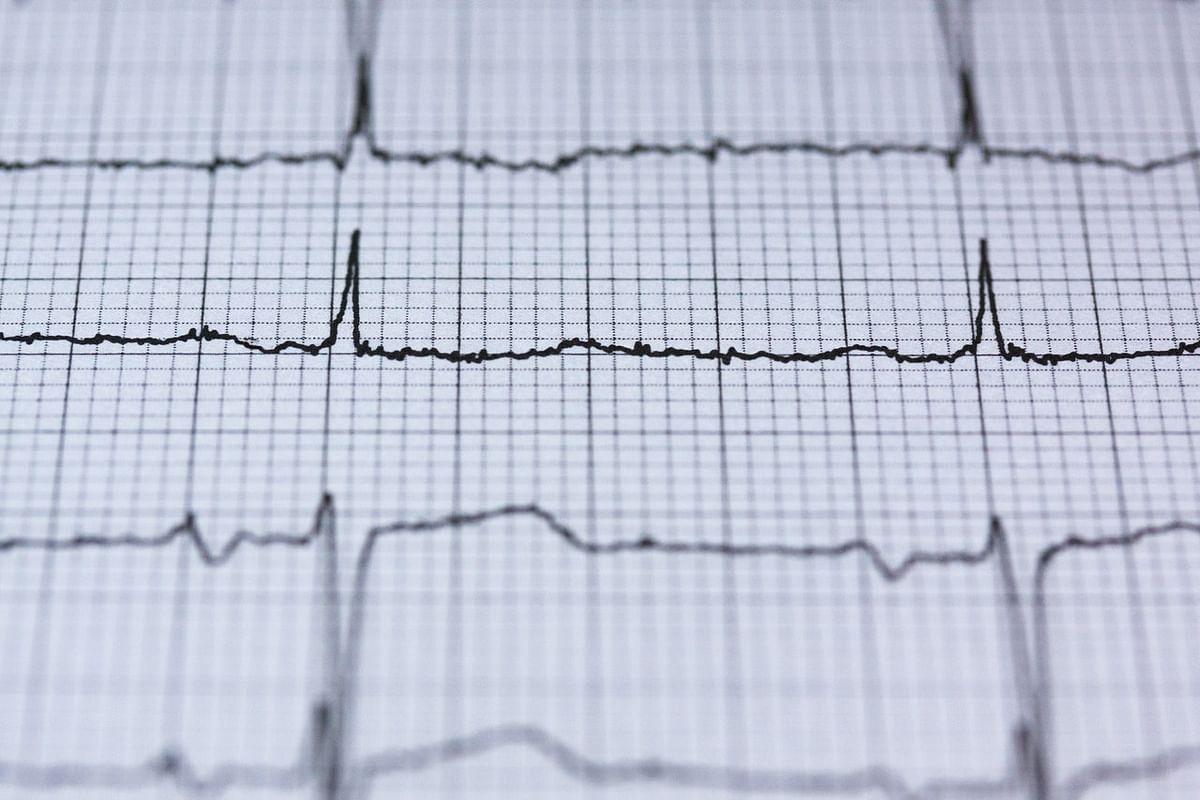 Heart Beat (Representational Image)