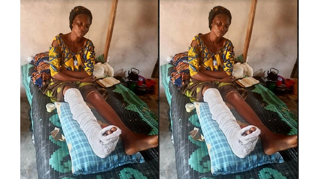Widow attacked, leg broken with hammer for demanding N8,500 wage from employer