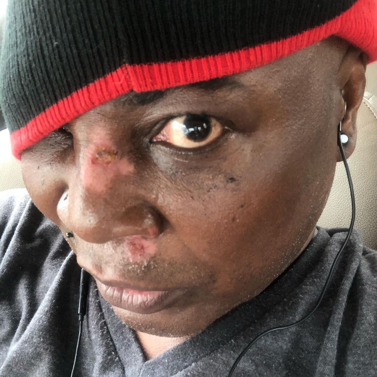 PHOTOS: Charly Boy sustains injuries in scooter accident
