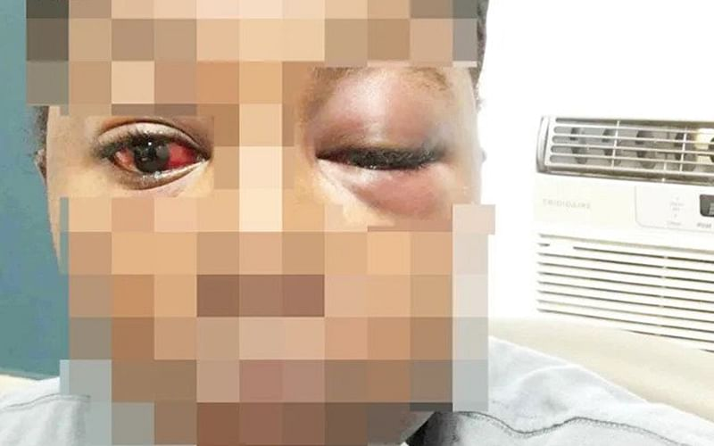 I feel like committing suicide, says lady battered, raped by kidnappers in Enugu