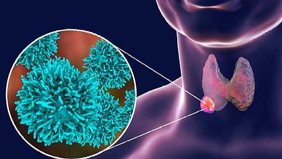 कोरोना संक्रमित मरीजों को हो सकती है थायराइड की भी समस्या