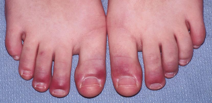 Winter Health Tips : क्या सर्दियों में आपके हाथ पैर की उंगलियां भी सूज जाती हैं? जानें इसके कारण और घरेलु उपाय