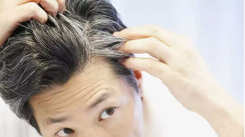 समय से पहले क्यों सफ़ेद होने लगते हैं बाल ? जाने क्या है कारण.! क्या इसे रोका जा सकता है ?