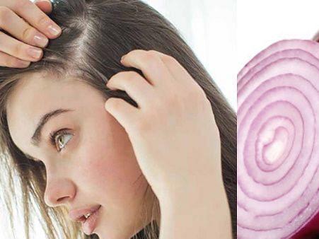 लंबे व ख़ूबसूरत बालों के लिए प्याज़ है बहुत उपयोगी, बना सकते है हेयर मास्क, जानें कैसे