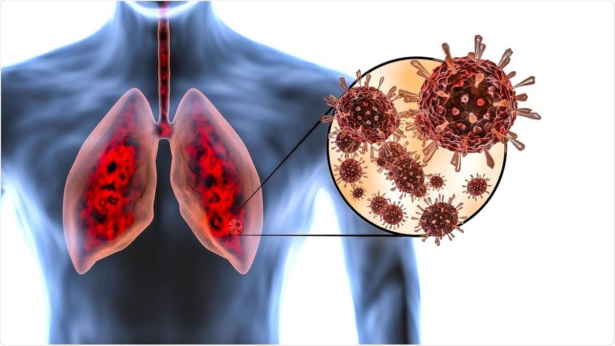 पैथोलॉजिकल ऑटोप्सी रिपोर्ट में हुआ खुलासा, कोरोना वायरस से फेफड़ों के साथ-साथ किडनी को भी पहुंचाता है नुकसान
